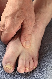 Diabetic Foot Care in Brick and Jackson, NJ